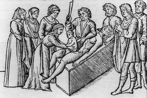 Cesarean Section - A Brief History: Part 1