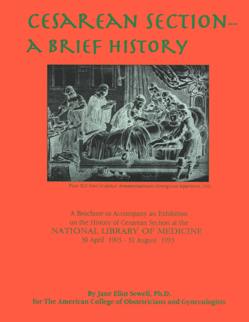 the history of cesarean section