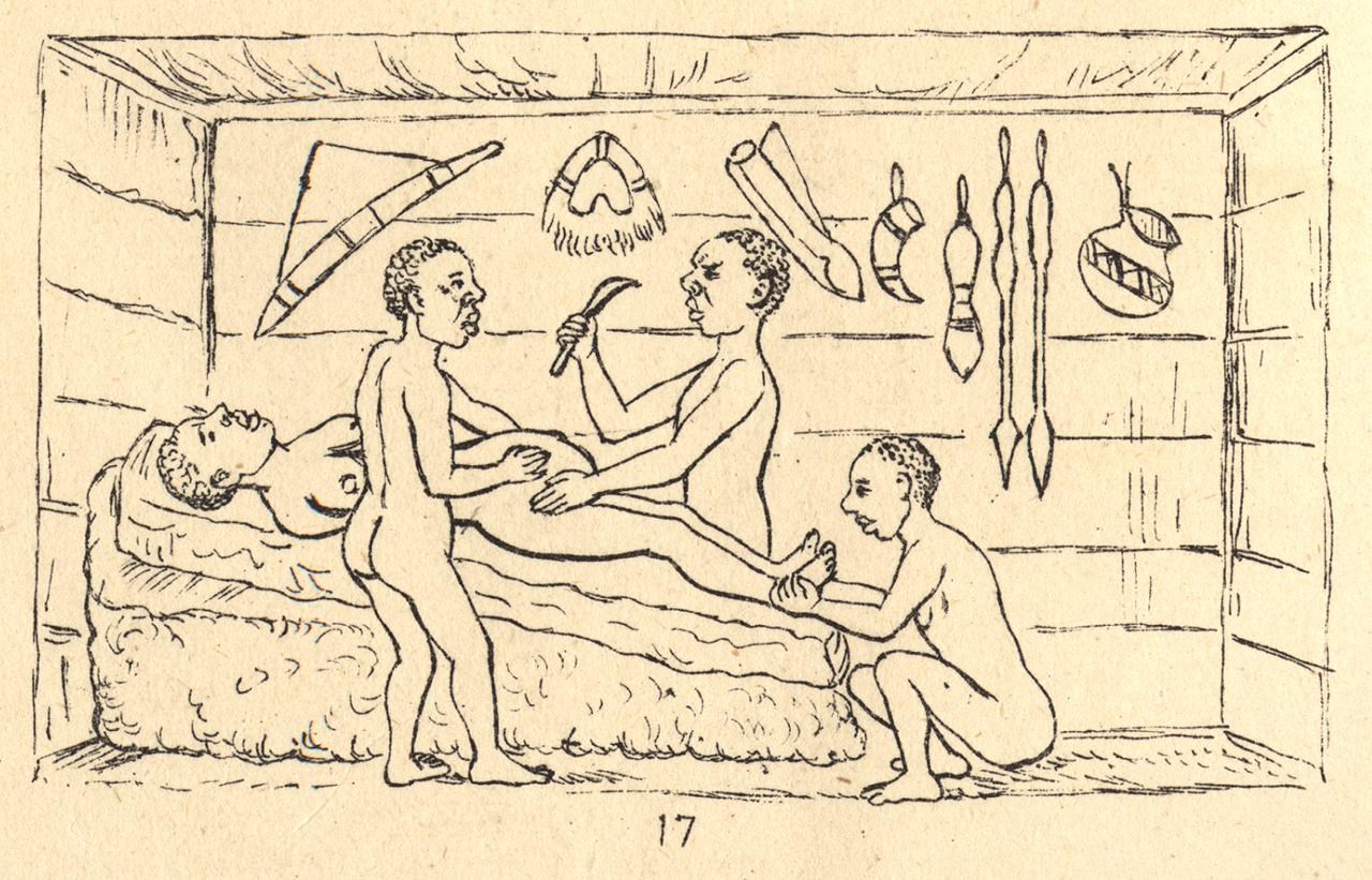 Cesarean Section - A Brief History: Part 2