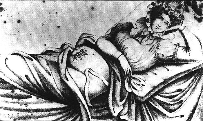 http://www.nlm.nih.gov/exhibition/cesarean/images/wound.jpg