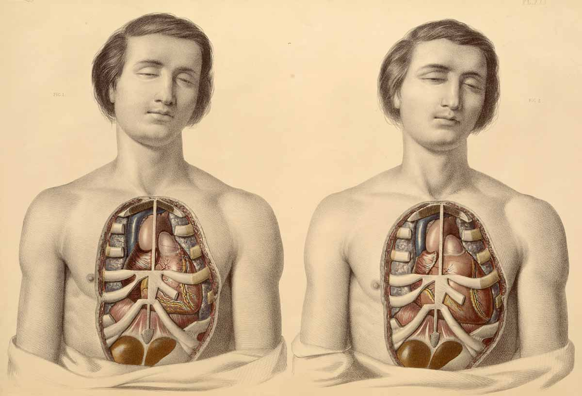 Dream Anatomy Gallery Sibson And Fairland Medical Anatomy