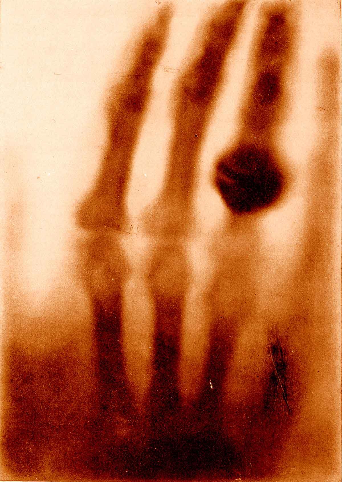 Fist x ray
