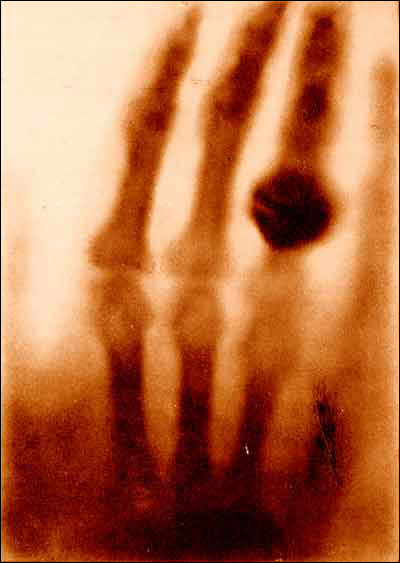 A blurry x-ray of four fingers, one of them with a large ring. From The hand of Mrs. Wilhelm Roentgen: the first X-ray image, 1895. In Otto Glasser, Wilhelm Conrad Röntgen and the early history of the Roentgen rays (London, 1933).