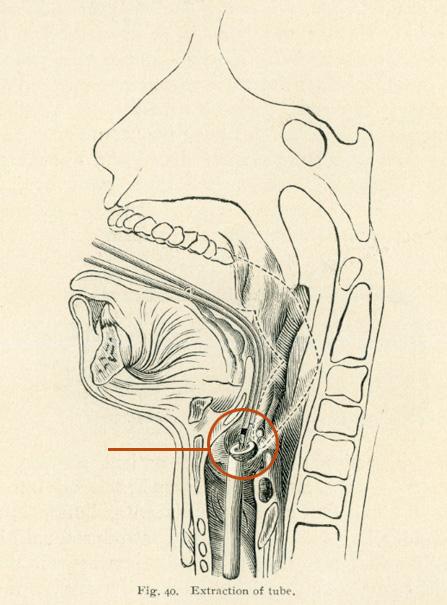Intubation Kit
