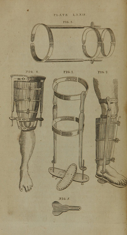 A system of surgery (Volume IV), plate LXXII