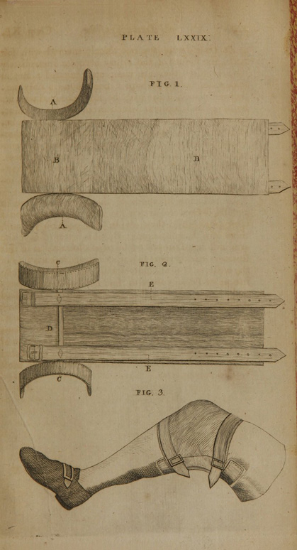 A system of surgery (Volume IV), Plate LXXIV