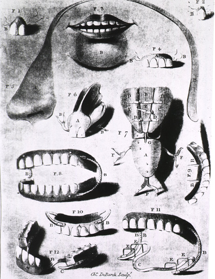 Illustration from Dissertation sur les dents artificielles