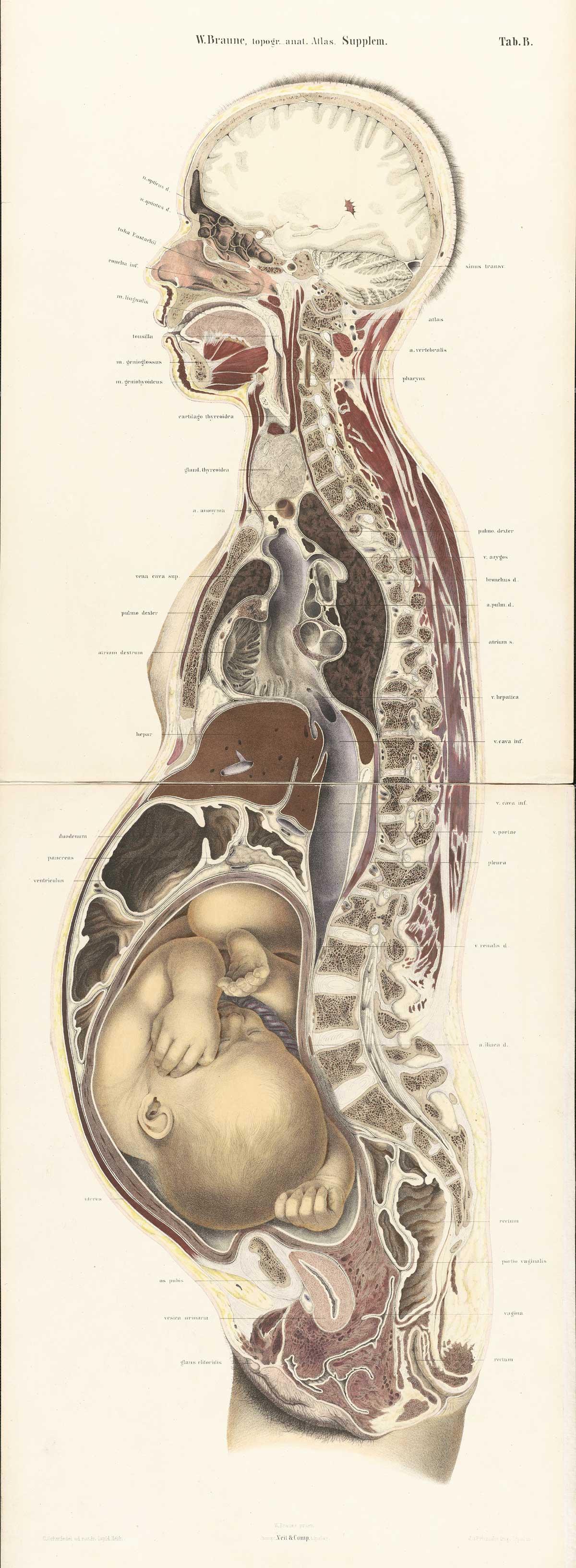 http://www.nlm.nih.gov/exhibition/historicalanatomies/Images/1200_pixels/braune2_B1.jpg
