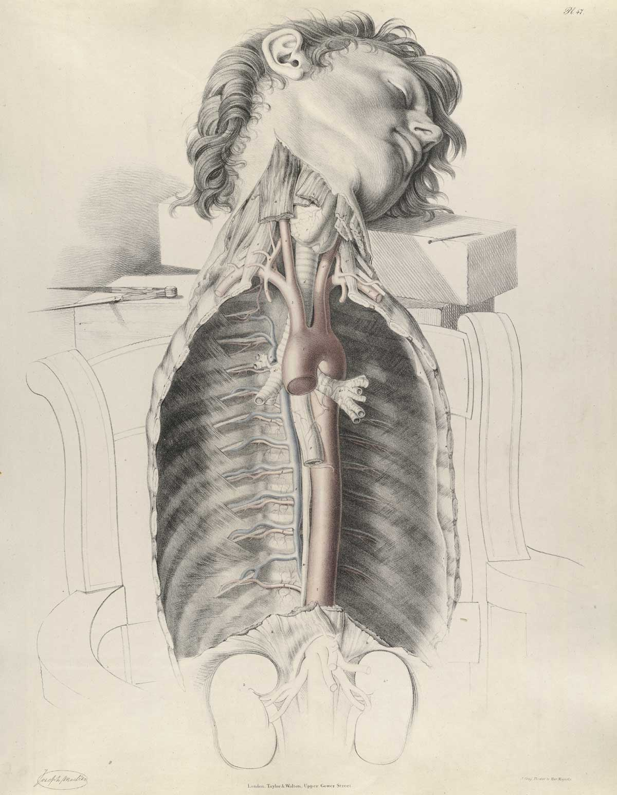 Historical Anatomies on the Web: Richard Quain Home