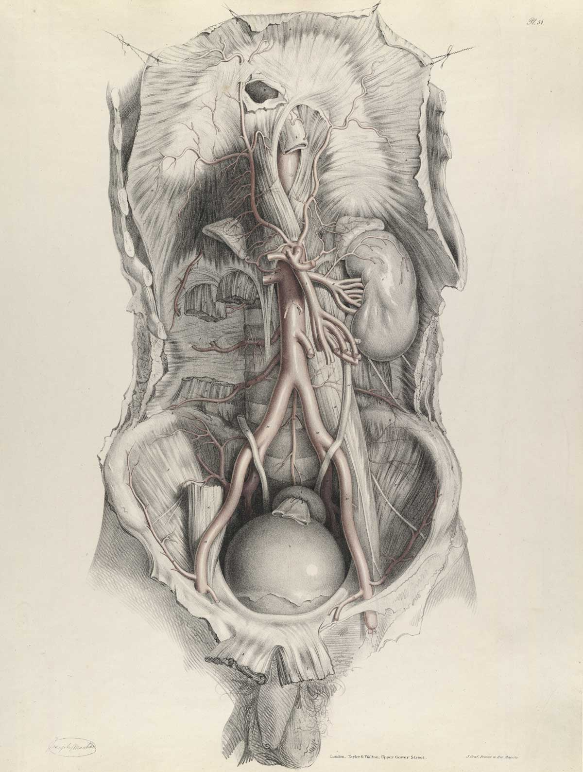 Historical anatomies on the web richard quain home plate 54 of quains the anatomy of the arteries of the human body with its ccuart Image collections