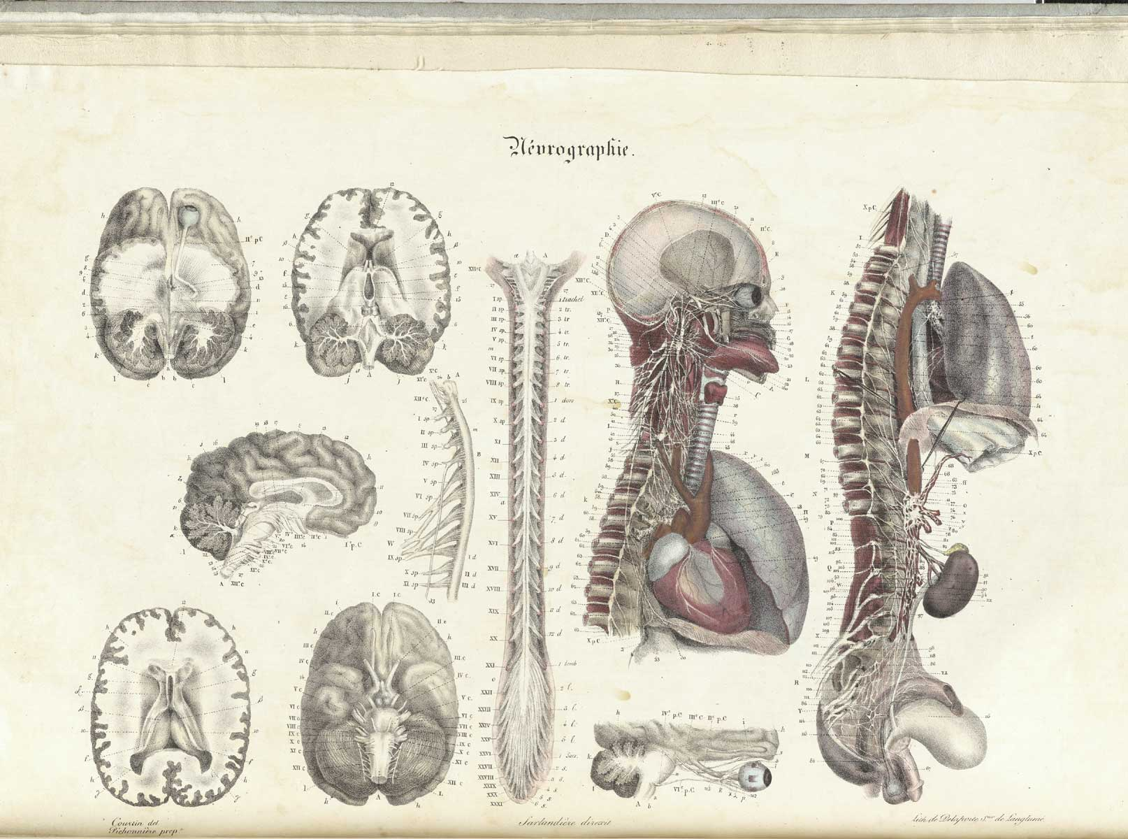 Historical Anatomies on the Web: Jean-Baptiste Sarlandiere Home