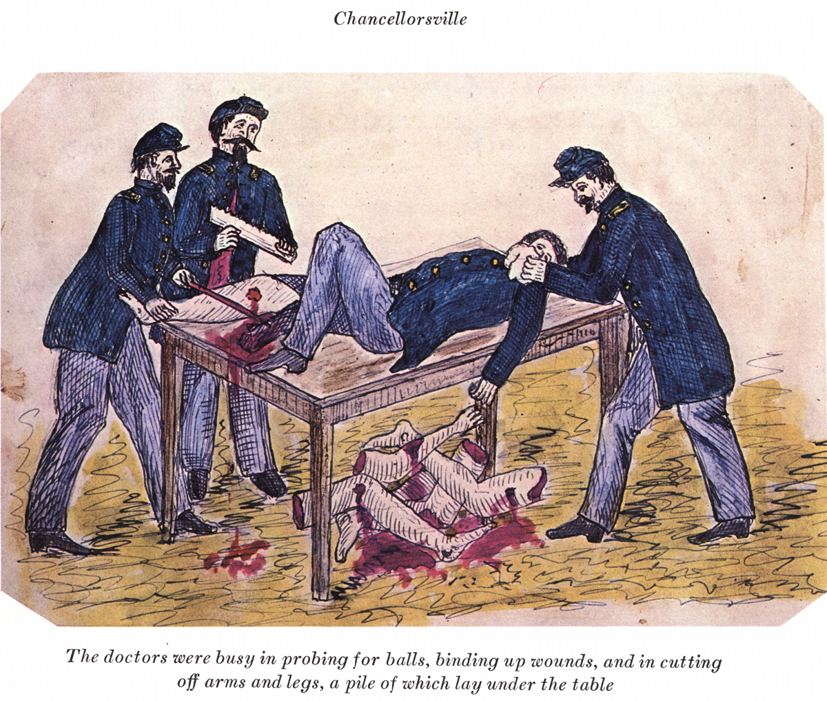 The doctors were busy in probing for balls binding up wounds and in