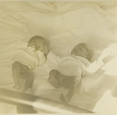 Small newborn twins lying in a bed, legs visible.