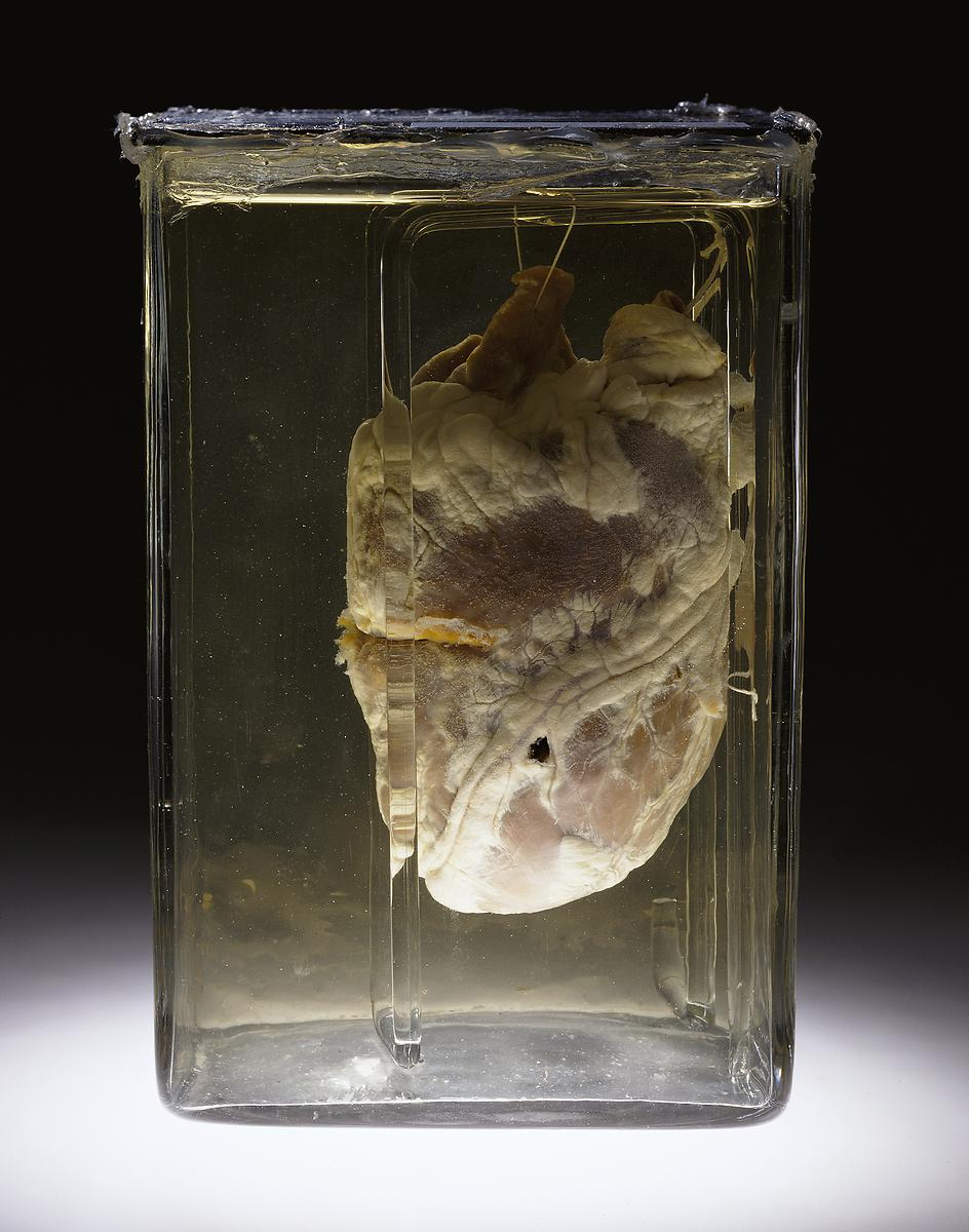 Visible Proofs: Forensic Views of the Body: Exhibition: Upon a View ...