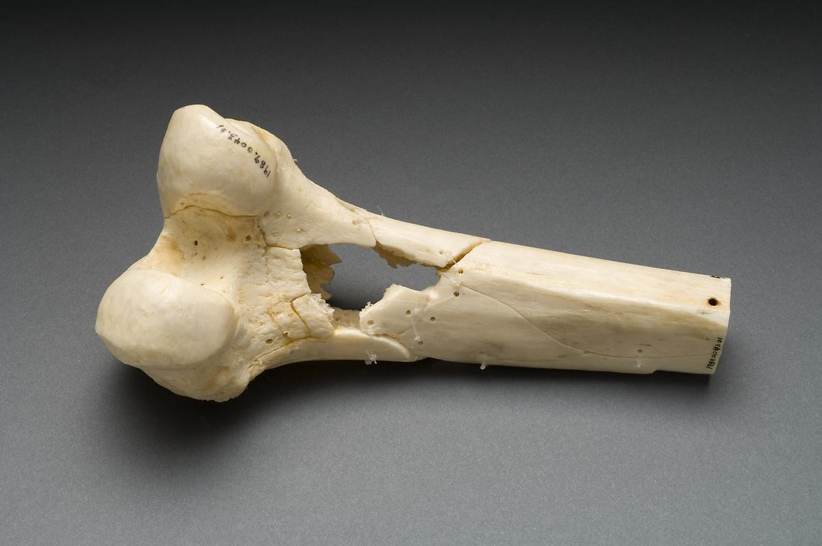 Human Femur Human distal femur shot with a