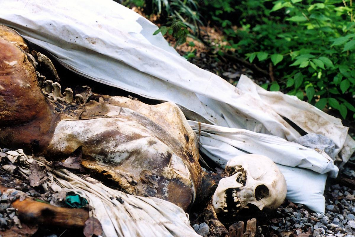 Human Decomposition Photos
