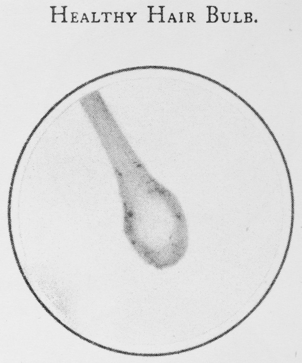 Hair Bulb Under Microscope Visible Proofs: Forens...