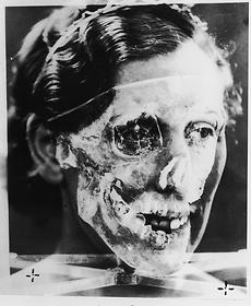Superimposed photographs, Mrs. Ruxton and skull no.2, 1935