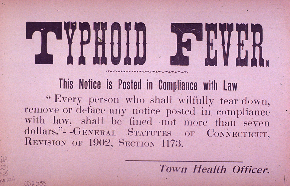 Image result for typhoid fever
