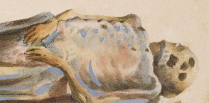 Chromolithograph of a cadaver