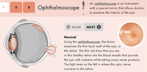 Opthalmoscope