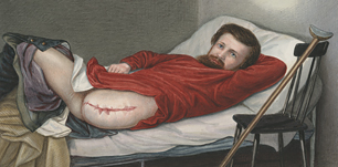 Chroma-lithograph of a wounded soldier in bed showing his amputated leg