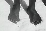 Leprosy disease essay