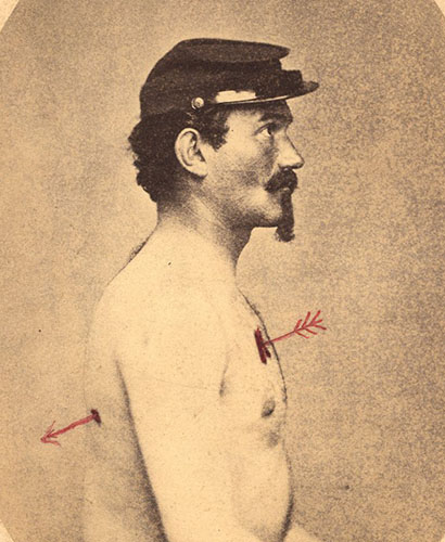 Man in profile, seated, shirtless, and wearing a military cap with an arrow showing the path of a bullet through the torso.