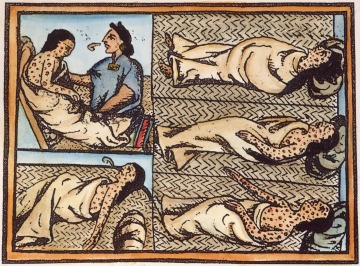 Drawing Showing Nahuas [Nahuatl] Infected with Smallpox Disease