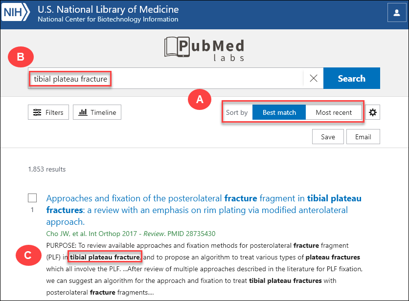 screenshot of PubMed Labs search results for tibial plateau fracture.